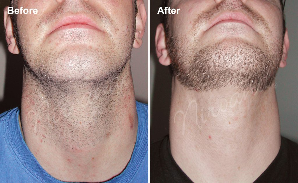 MC-4-sessions-of-laser-hair-removal